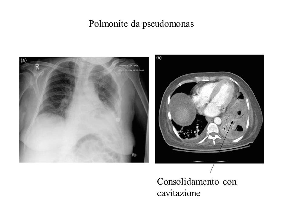 Polmonite da pseudomonas Consolidamento con cavitazione