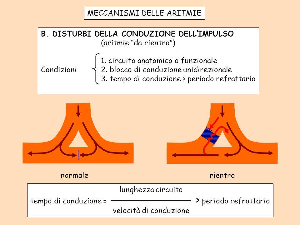 MECCANISMI DELLE ARITMIE B.DISTURBI DELLA CONDUZIONE DELLIMPULSO (aritmie da rientro) 1.