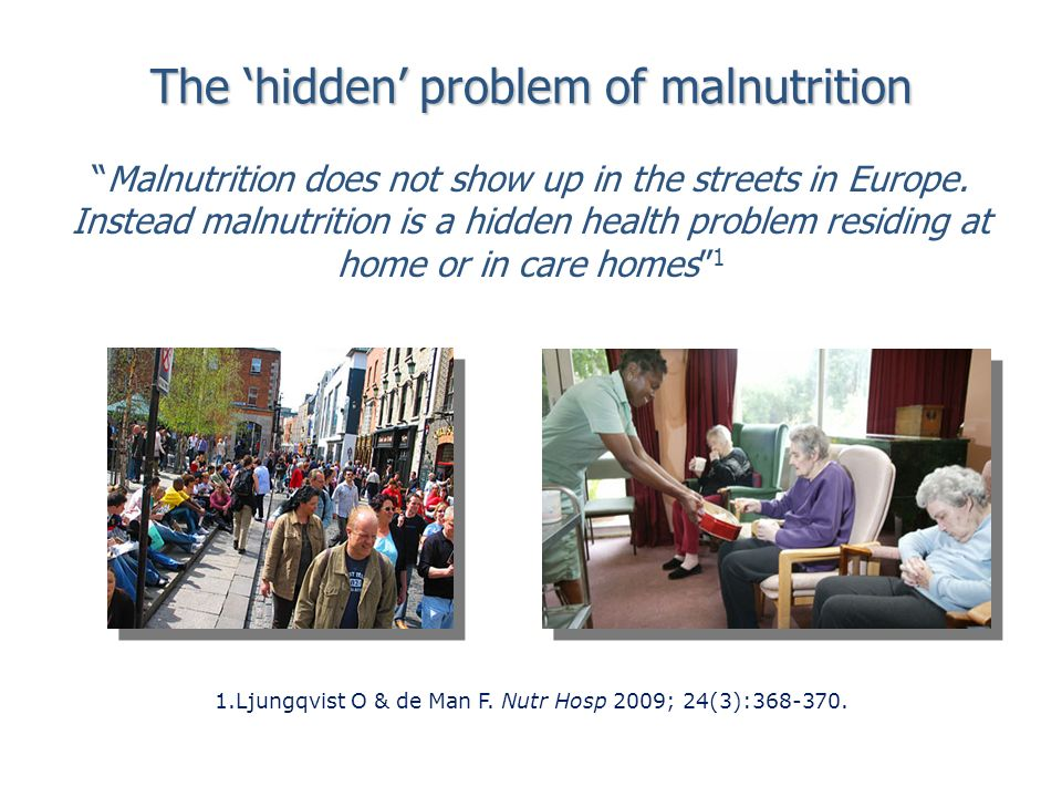 The hidden problem of malnutrition 1.Ljungqvist O & de Man F.