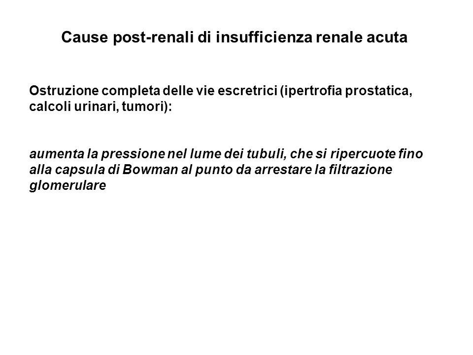 Cause post-renali di insufficienza renale acuta Ostruzione completa delle vie escretrici (ipertrofia prostatica, calcoli urinari, tumori): aumenta la