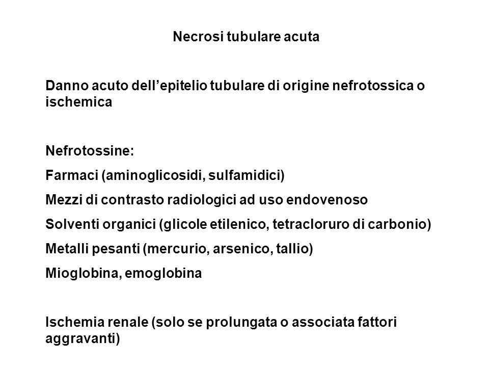 Necrosi tubulare acuta Danno acuto dellepitelio tubulare di origine nefrotossica o ischemica Nefrotossine: Farmaci (aminoglicosidi, sulfamidici) Mezzi