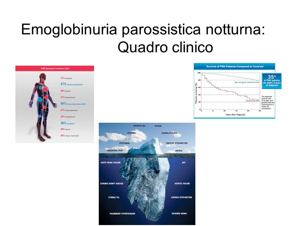 Emoglobinuria parossistica notturna: Quadro clinico