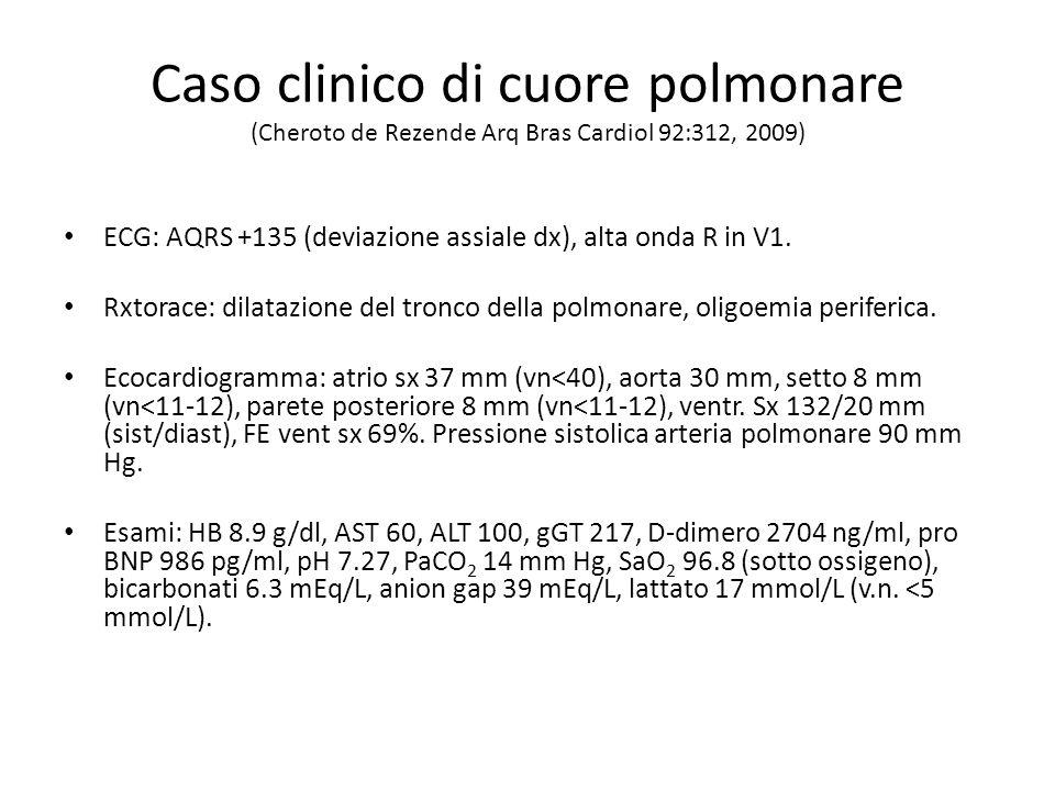 Caso clinico di cuore polmonare (Cheroto de Rezende Arq Bras Cardiol 92:312, 2009) ECG: AQRS +135 (deviazione assiale dx), alta onda R in V1. Rxtorace