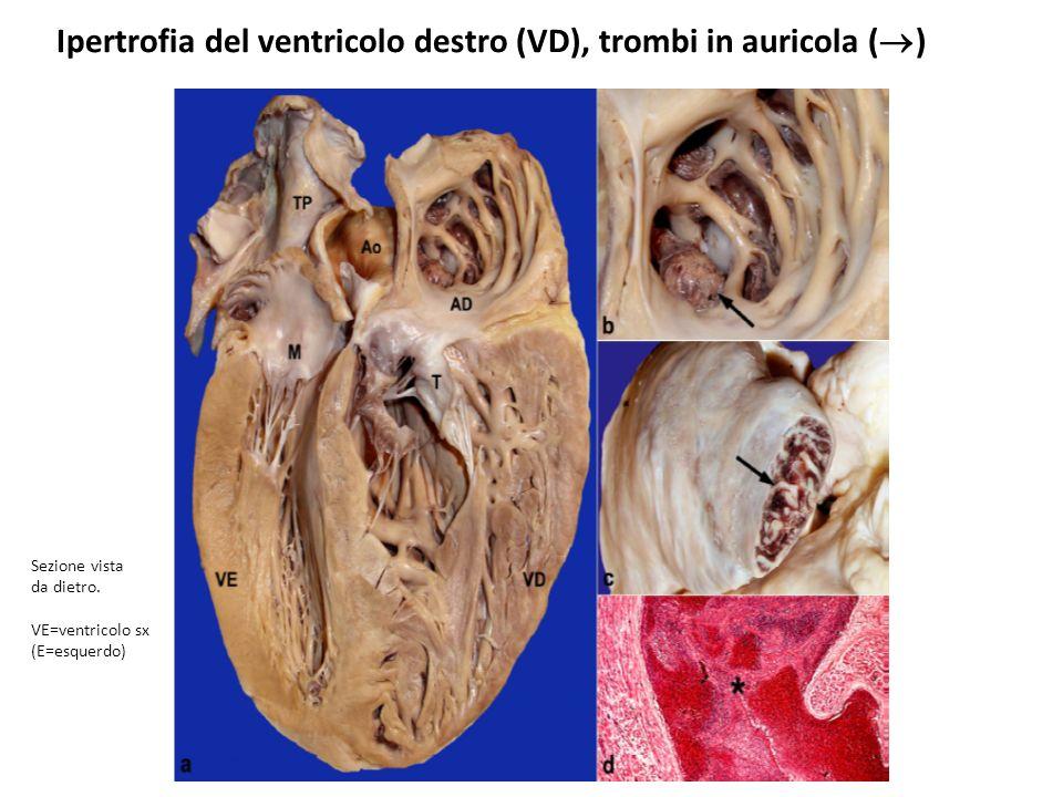 Ipertrofia del ventricolo destro (VD), trombi in auricola ( ) Sezione vista da dietro. VE=ventricolo sx (E=esquerdo)