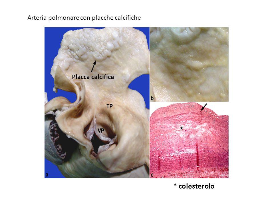 Placca calcifica * colesterolo Arteria polmonare con placche calcifiche