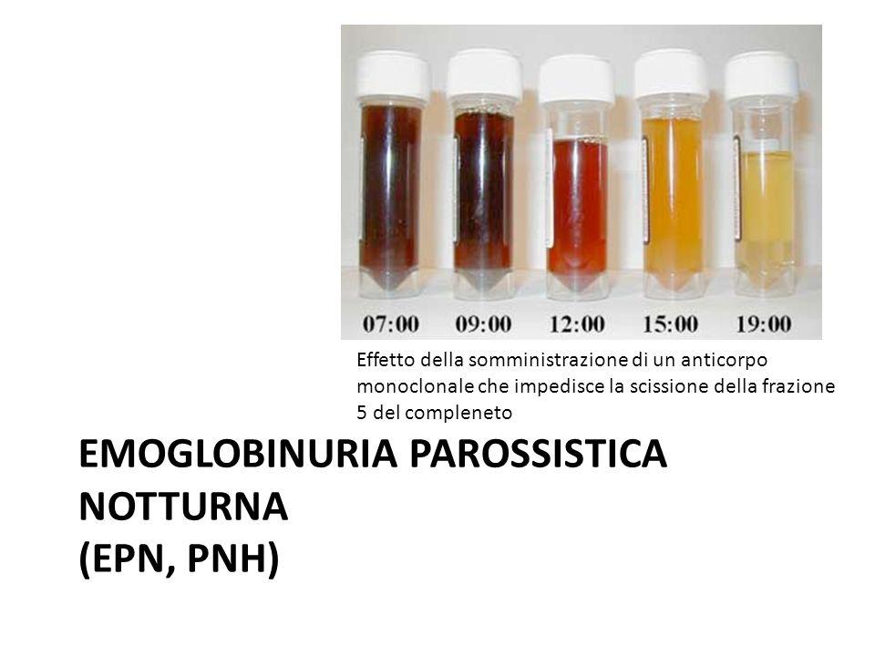EMOGLOBINURIA PAROSSISTICA NOTTURNA (EPN, PNH) Effetto della somministrazione di un anticorpo monoclonale che impedisce la scissione della frazione 5