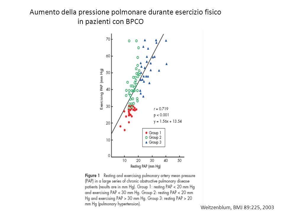 Aumento della pressione polmonare durante esercizio fisico in pazienti con BPCO Weitzenblum, BMJ 89:225, 2003