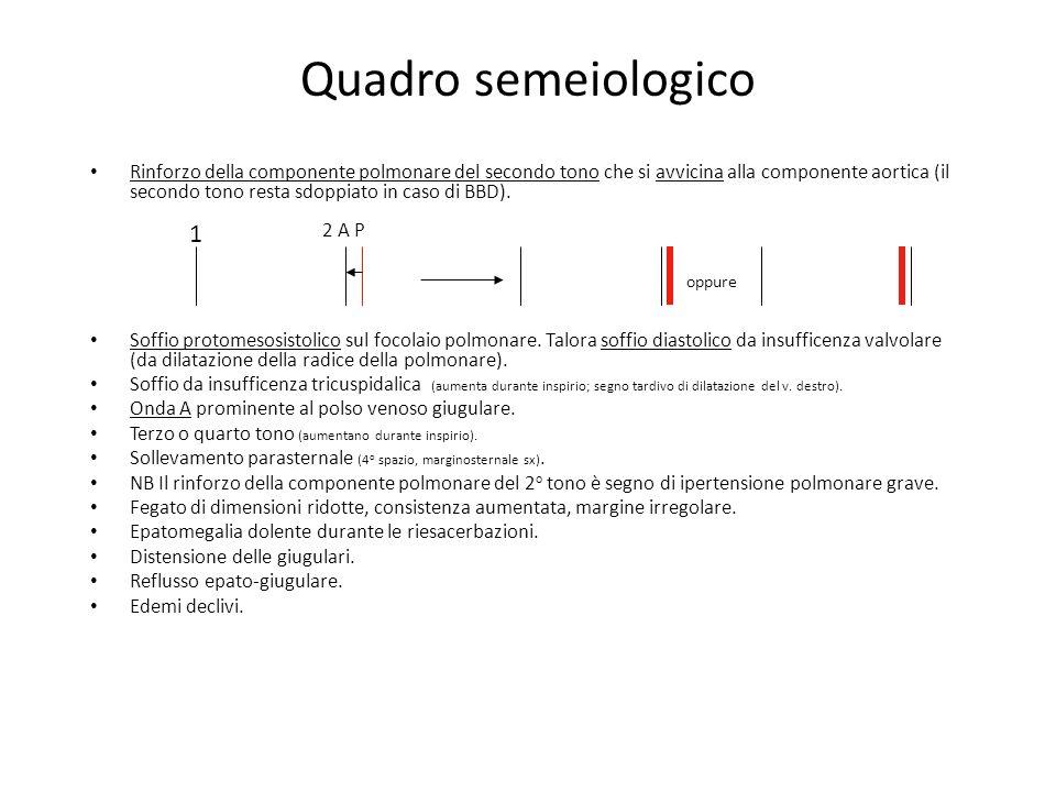 Quadro semeiologico Rinforzo della componente polmonare del secondo tono che si avvicina alla componente aortica (il secondo tono resta sdoppiato in c