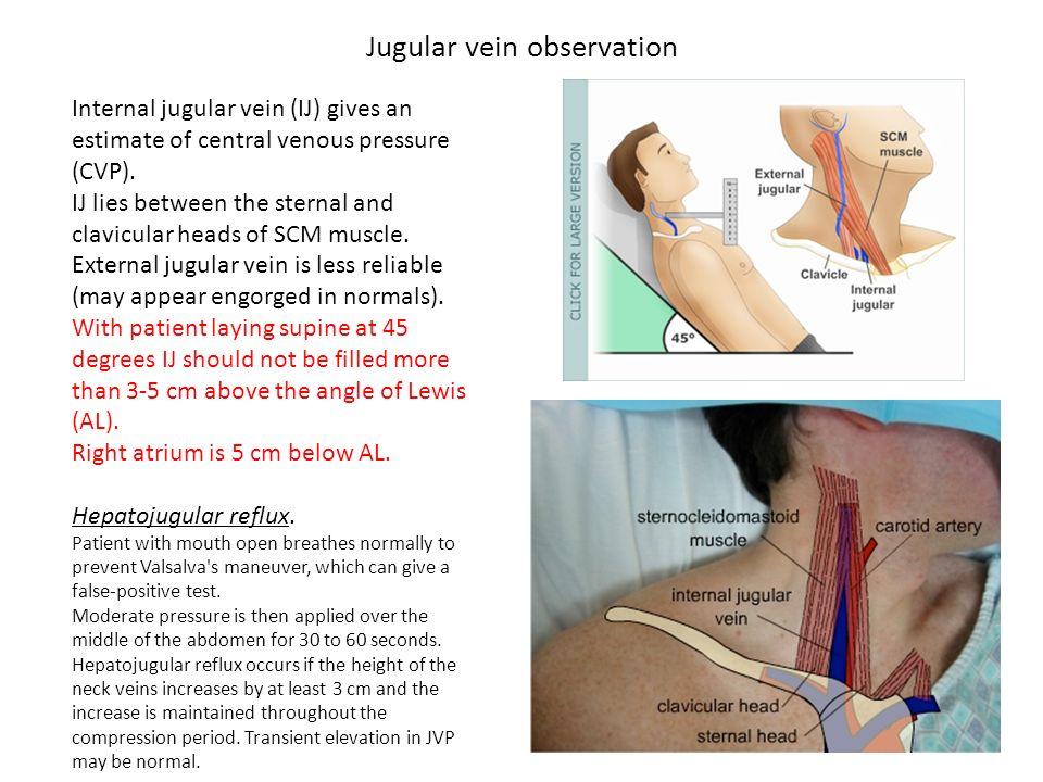 Jugular vein observation Internal jugular vein (IJ) gives an estimate of central venous pressure (CVP). IJ lies between the sternal and clavicular hea