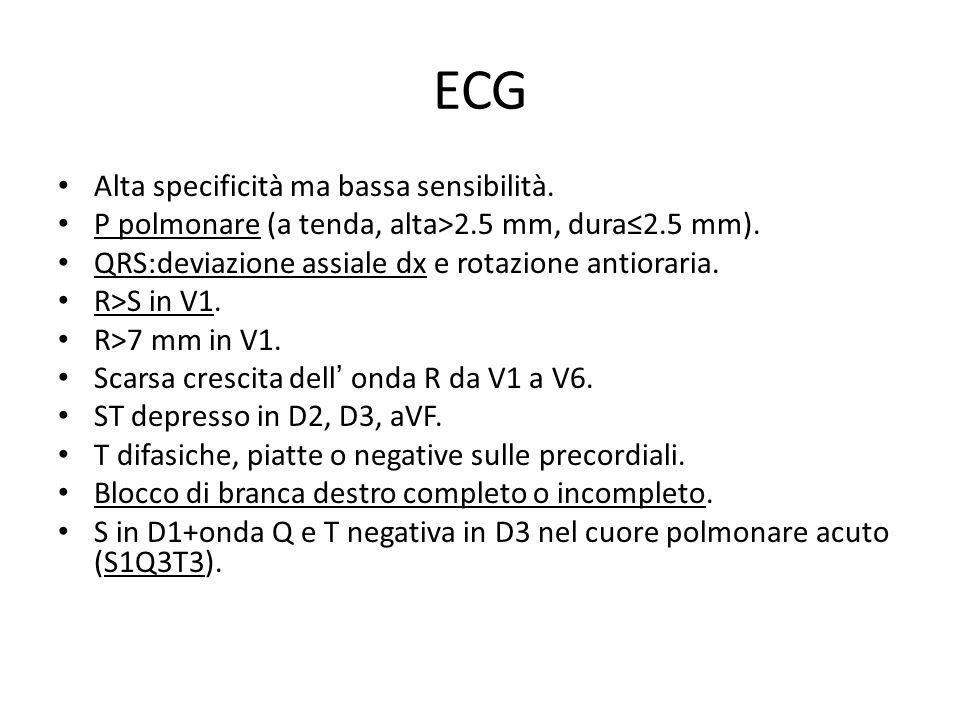 ECG Alta specificità ma bassa sensibilità. P polmonare (a tenda, alta>2.5 mm, dura2.5 mm). QRS:deviazione assiale dx e rotazione antioraria. R>S in V1