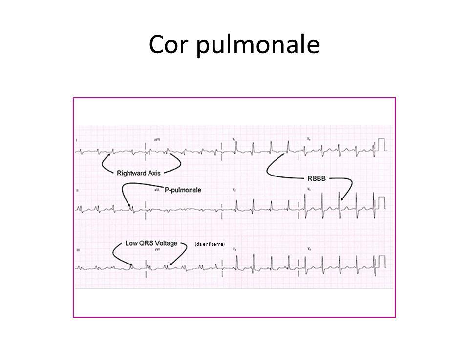 Cor pulmonale (da enfisema)