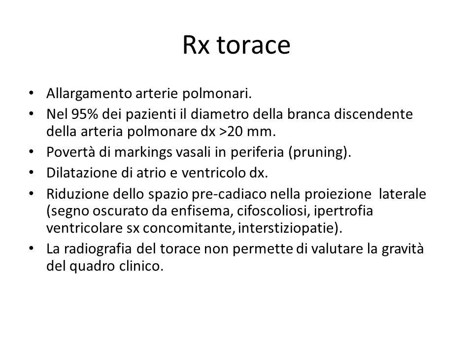 Rx torace Allargamento arterie polmonari. Nel 95% dei pazienti il diametro della branca discendente della arteria polmonare dx >20 mm. Povertà di mark