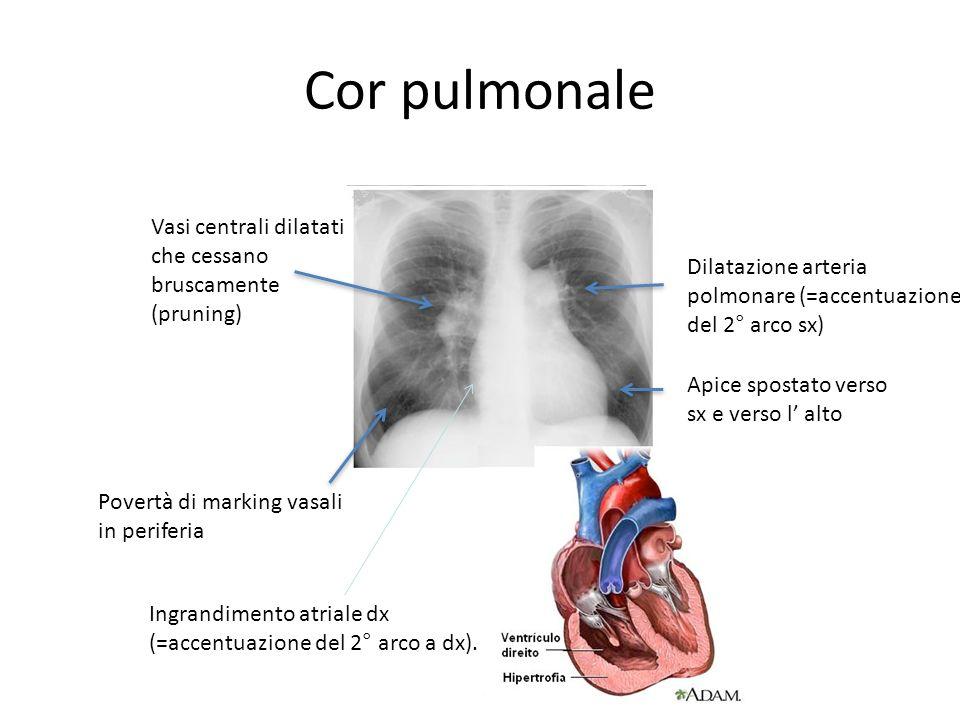 Cor pulmonale Dilatazione arteria polmonare (=accentuazione del 2° arco sx) Vasi centrali dilatati che cessano bruscamente (pruning) Povertà di markin