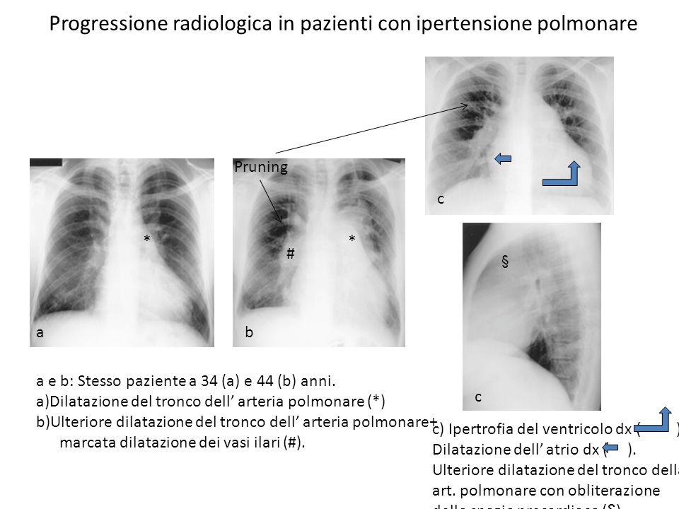 Progressione radiologica in pazienti con ipertensione polmonare a e b: Stesso paziente a 34 (a) e 44 (b) anni. a)Dilatazione del tronco dell arteria p