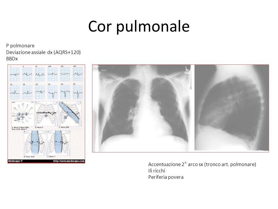Cor pulmonale P polmonare Deviazione assiale dx (AQRS+120) BBDx Accentuazione 2° arco sx (tronco art. polmonare) Ili ricchi Periferia povera