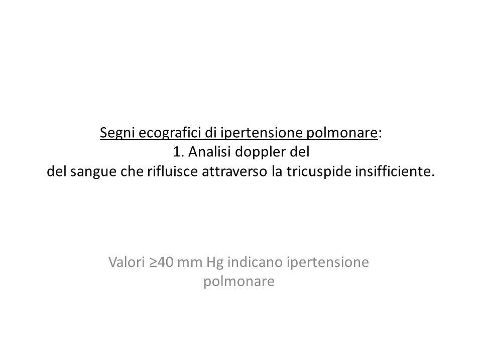 Segni ecografici di ipertensione polmonare: 1. Analisi doppler del del sangue che rifluisce attraverso la tricuspide insifficiente. Valori 40 mm Hg in