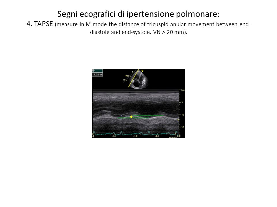Segni ecografici di ipertensione polmonare: 4. TAPSE (measure in M-mode the distance of tricuspid anular movement between end- diastole and end-systol