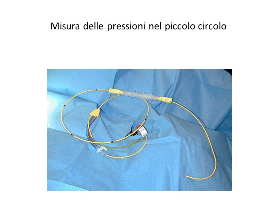 Pressione a catetere occludente (wedge pressure)= pressione in atrio sx.