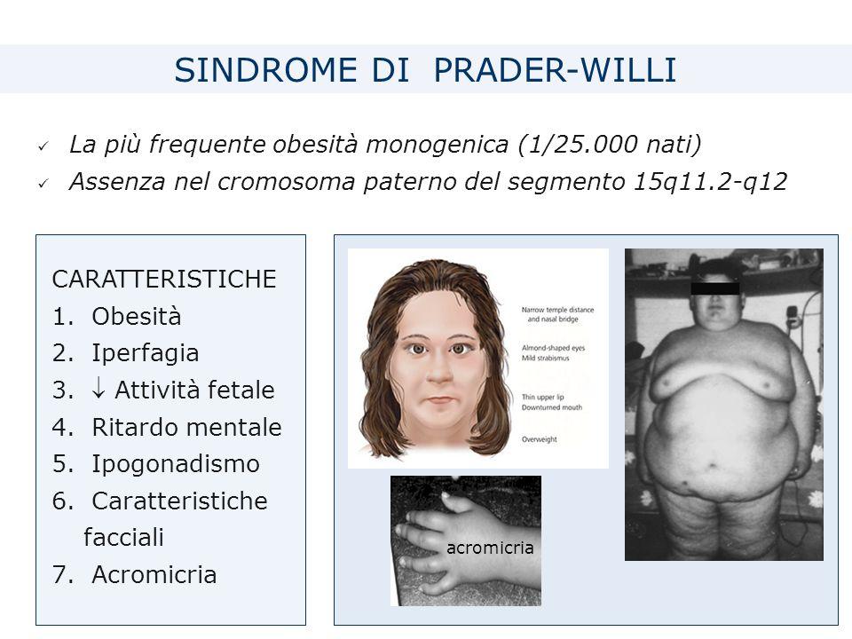 La più frequente obesità monogenica (1/25.000 nati) Assenza nel cromosoma paterno del segmento 15q11.2-q12 CARATTERISTICHE 1.