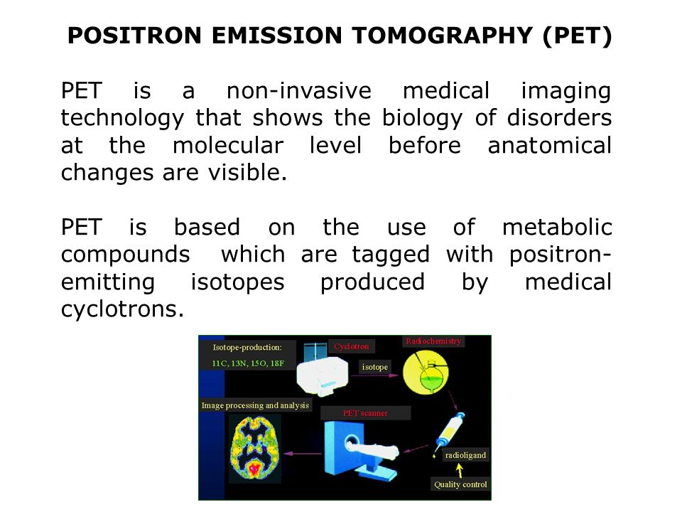POSITRON EMISSION TOMOGRAPHY (PET) PET is a non-invasive medical imaging technology that shows the biology of disorders at the molecular level before