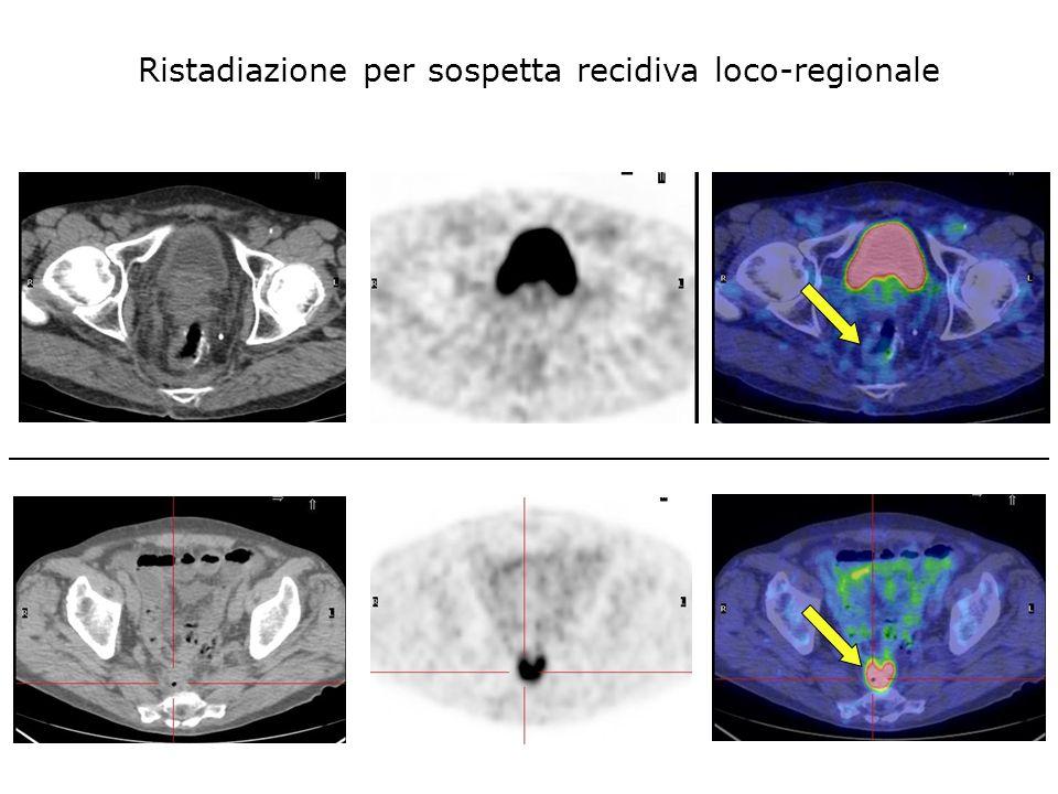 CT FDG-PET FUSION Ristadiazione per sospetta recidiva loco-regionale