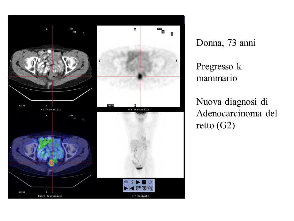 Donna, 73 anni Pregresso k mammario Nuova diagnosi di Adenocarcinoma del retto (G2)