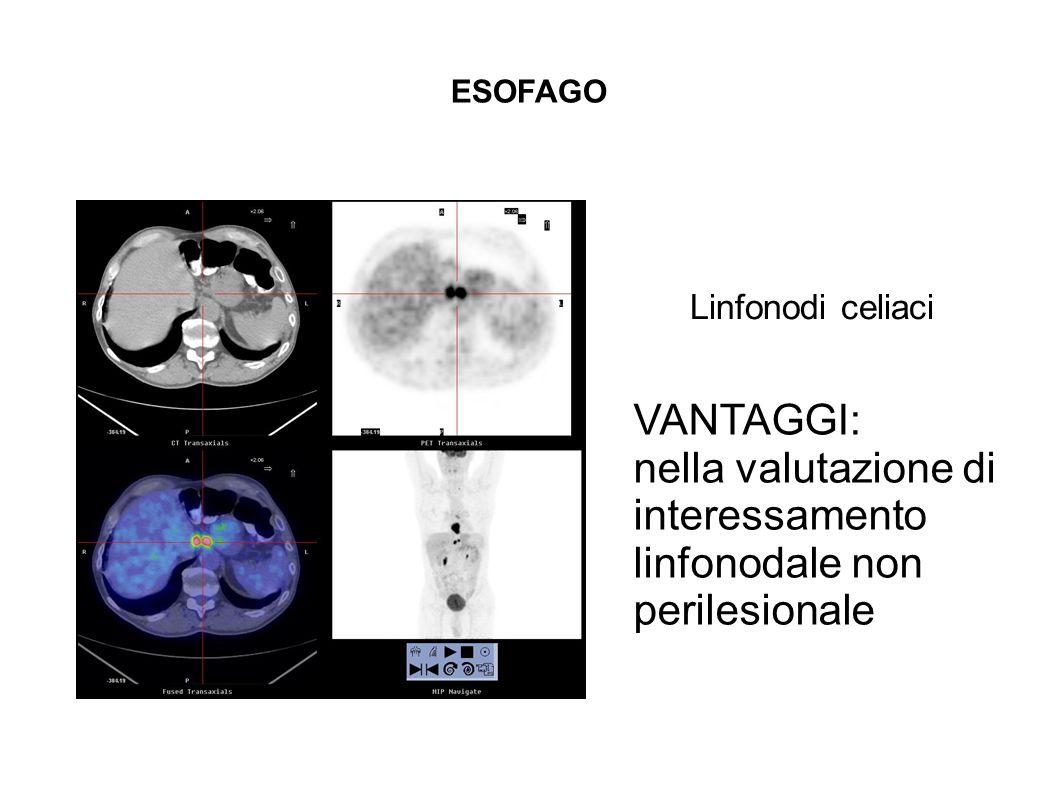 ESOFAGO Linfonodi celiaci VANTAGGI: nella valutazione di interessamento linfonodale non perilesionale