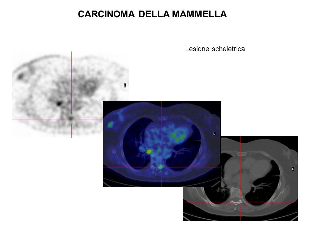 CARCINOMA DELLA MAMMELLA Lesione scheletrica