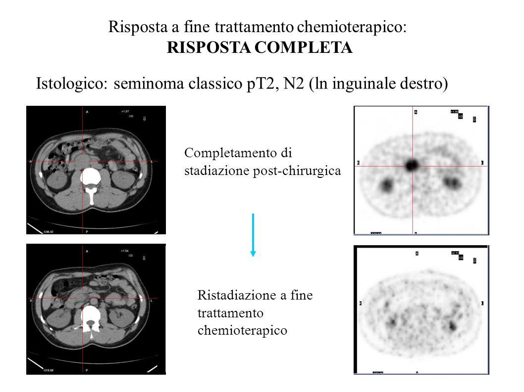 Completamento di stadiazione post-chirurgica Risposta a fine trattamento chemioterapico: RISPOSTA COMPLETA Istologico: seminoma classico pT2, N2 (ln inguinale destro) Ristadiazione a fine trattamento chemioterapico