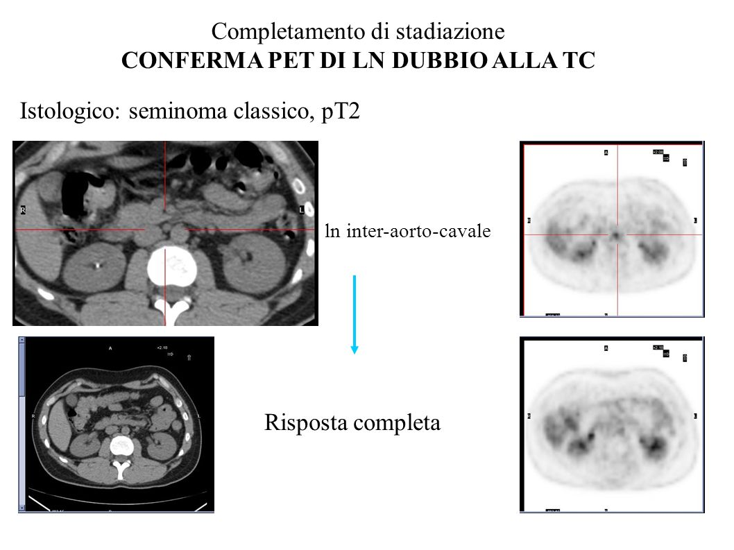 Istologico: seminoma classico, pT2 PET/TC: ln inter-aorto-cavale Completamento di stadiazione CONFERMA PET DI LN DUBBIO ALLA TC Risposta completa