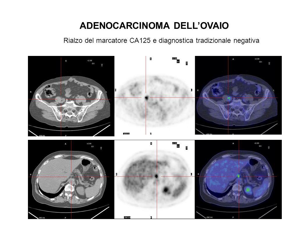 ristadiazione INDICAZIONE: TUMORI DELLA MAMMELLA POTENZIALMENTE UTILE Ristadiazione in pazienti con lesione metastatica unica potenzialmente operabile Ristadiazione in pazienti con sospetto laboratoristico e/o reperti di diagnostica per immagini dubbi o negativi Radan L et al.The role of FDG-PET/CT in suspected recurrence of breast cancer.