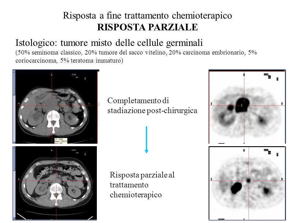 Risposta a fine trattamento chemioterapico RISPOSTA PARZIALE Istologico: tumore misto delle cellule germinali (50% seminoma classico, 20% tumore del s