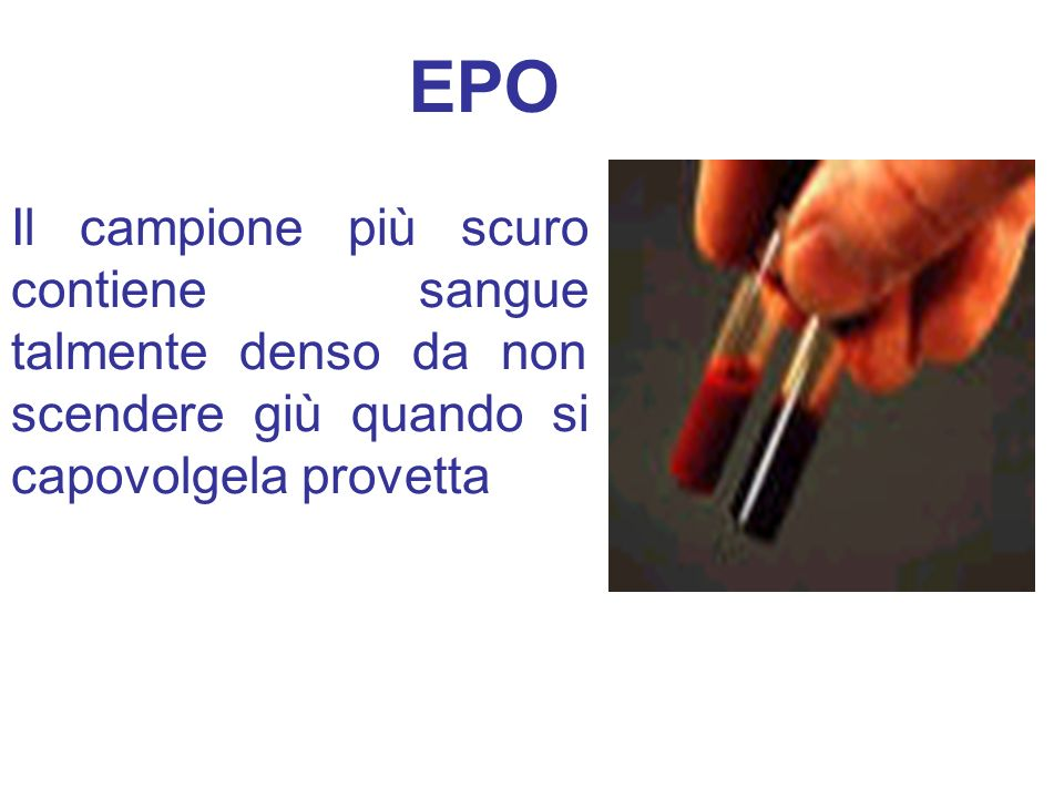 Il campione più scuro contiene sangue talmente denso da non scendere giù quando si capovolgela provetta EPO