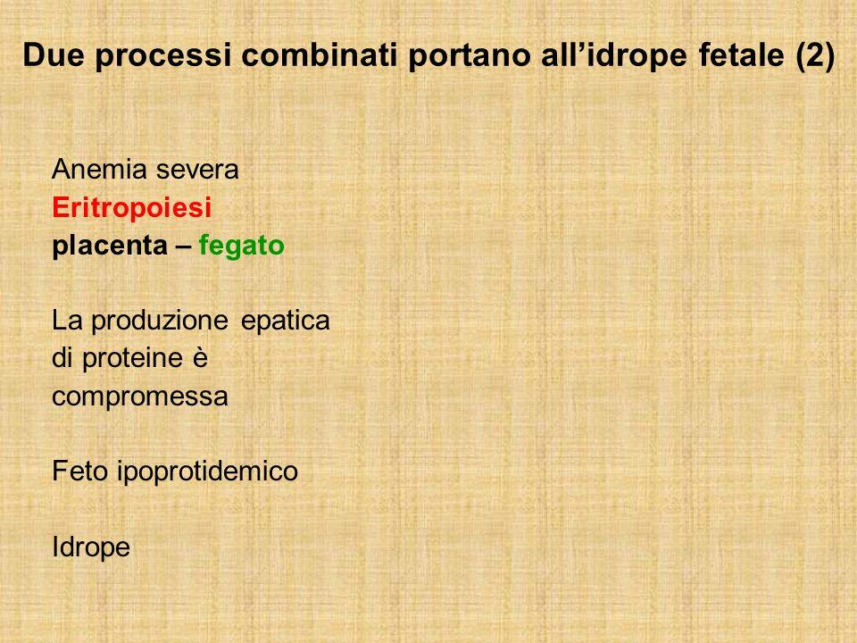 Due processi combinati portano allidrope fetale (2) Anemia severa Eritropoiesi placenta – fegato La produzione epatica di proteine è compromessa Feto