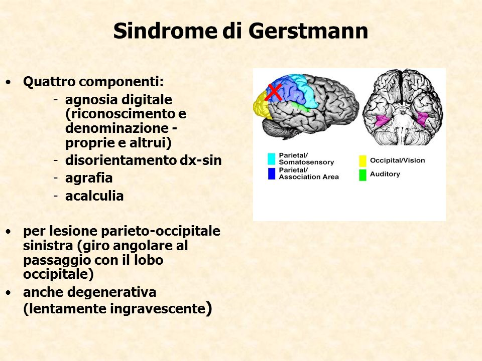 Sindrome di Gerstmann Quattro componenti: -agnosia digitale (riconoscimento e denominazione - proprie e altrui) -disorientamento dx-sin -agrafia -acal