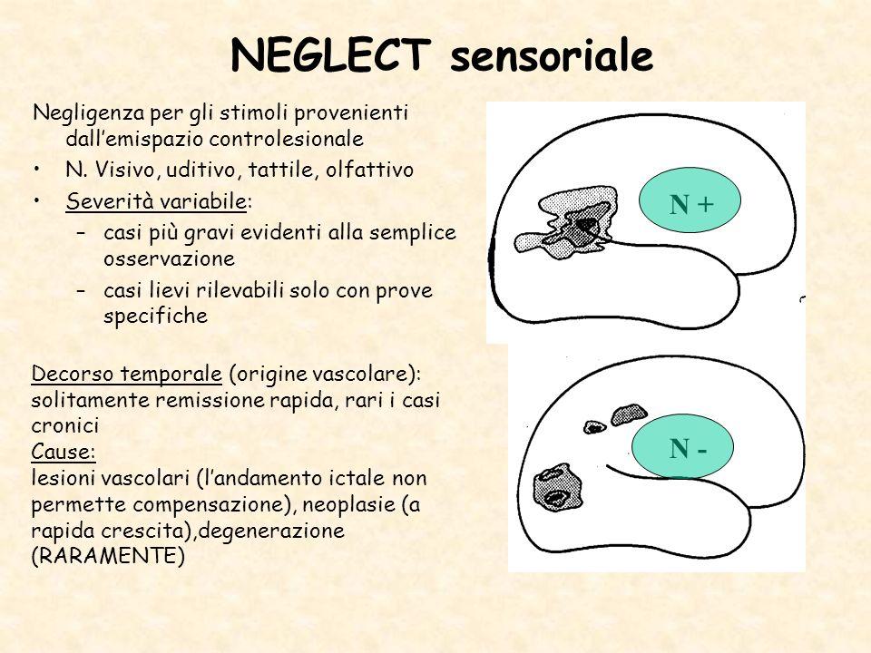 NEGLECT sensoriale Negligenza per gli stimoli provenienti dallemispazio controlesionale N. Visivo, uditivo, tattile, olfattivo Severità variabile: –ca