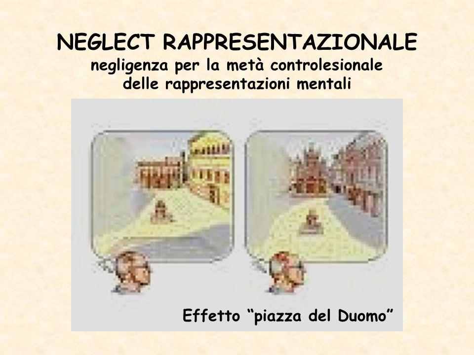 NEGLECT RAPPRESENTAZIONALE negligenza per la metà controlesionale delle rappresentazioni mentali Effetto piazza del Duomo
