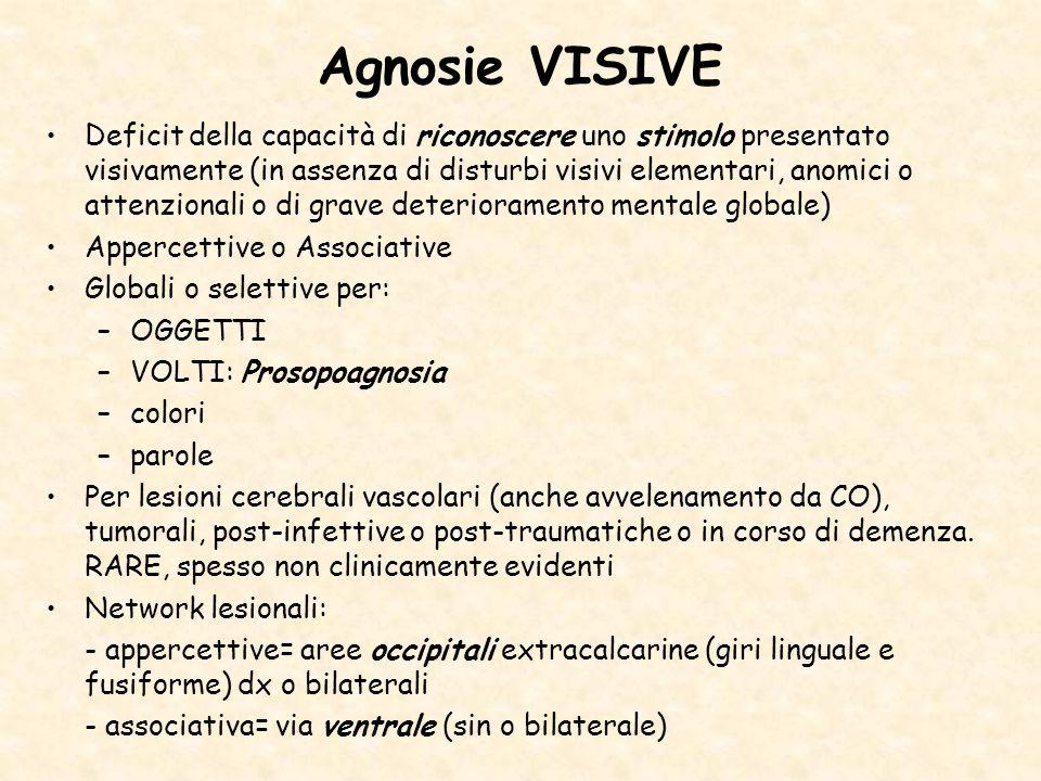 Agnosie VISIVE Deficit della capacità di riconoscere uno stimolo presentato visivamente (in assenza di disturbi visivi elementari, anomici o attenzion