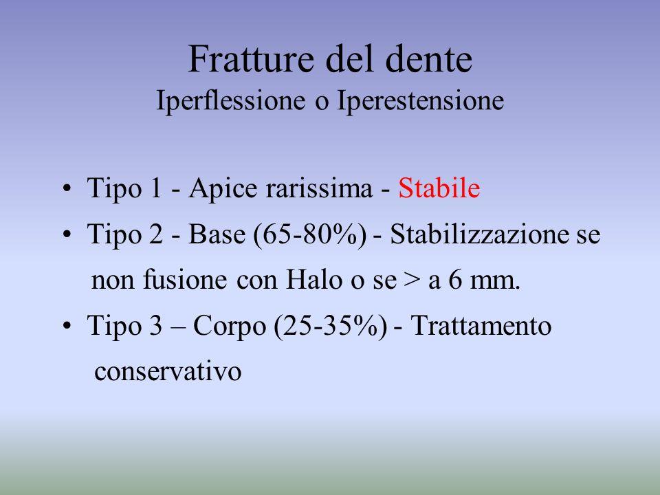 Fratture del dente Iperflessione o Iperestensione Tipo 1 - Apice rarissima - Stabile Tipo 2 - Base (65-80%) - Stabilizzazione se non fusione con Halo
