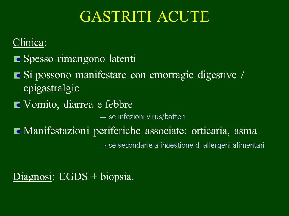 GASTRITI ACUTE Clinica: Spesso rimangono latenti Si possono manifestare con emorragie digestive / epigastralgie Vomito, diarrea e febbre se infezioni