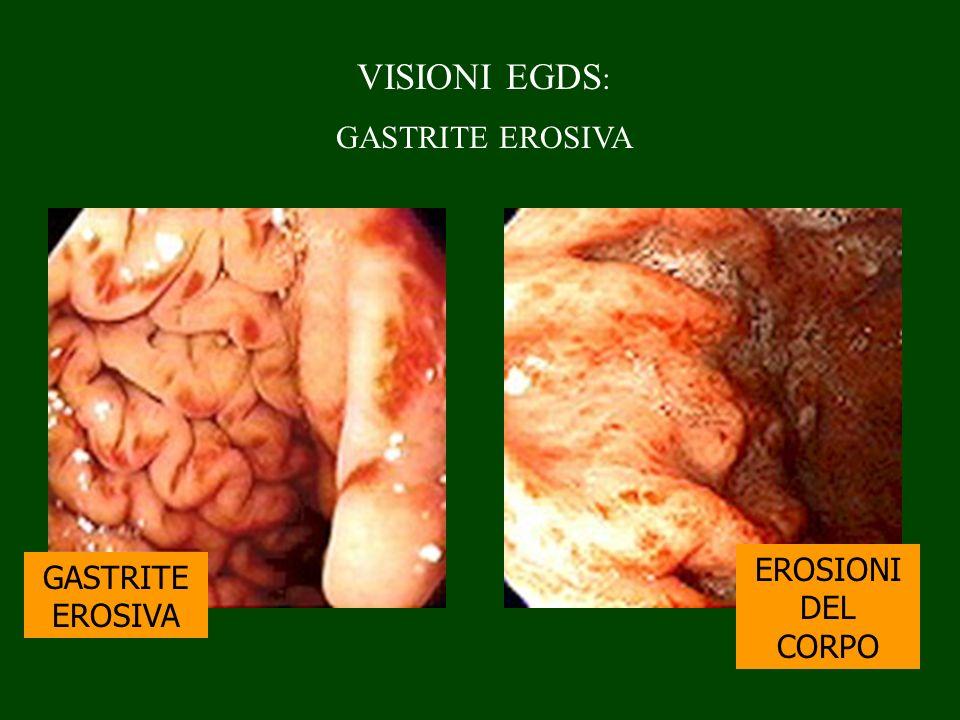 VISIONI EGDS : GASTRITE EROSIVA EROSIONI DEL CORPO GASTRITE EROSIVA