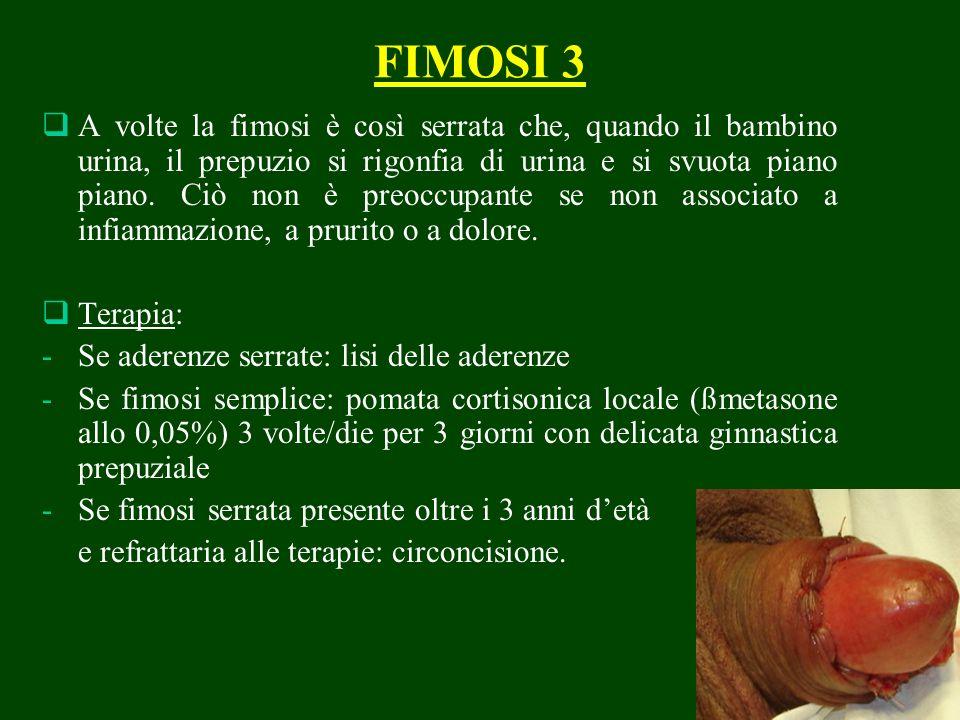 FIMOSI 3 A volte la fimosi è così serrata che, quando il bambino urina, il prepuzio si rigonfia di urina e si svuota piano piano. Ciò non è preoccupan