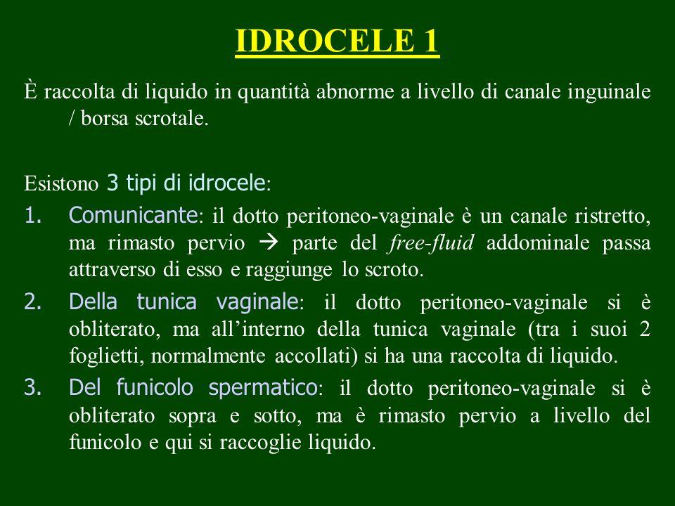 IDROCELE 1 È raccolta di liquido in quantità abnorme a livello di canale inguinale / borsa scrotale. Esistono 3 tipi di idrocele : 1.Comunicante : il