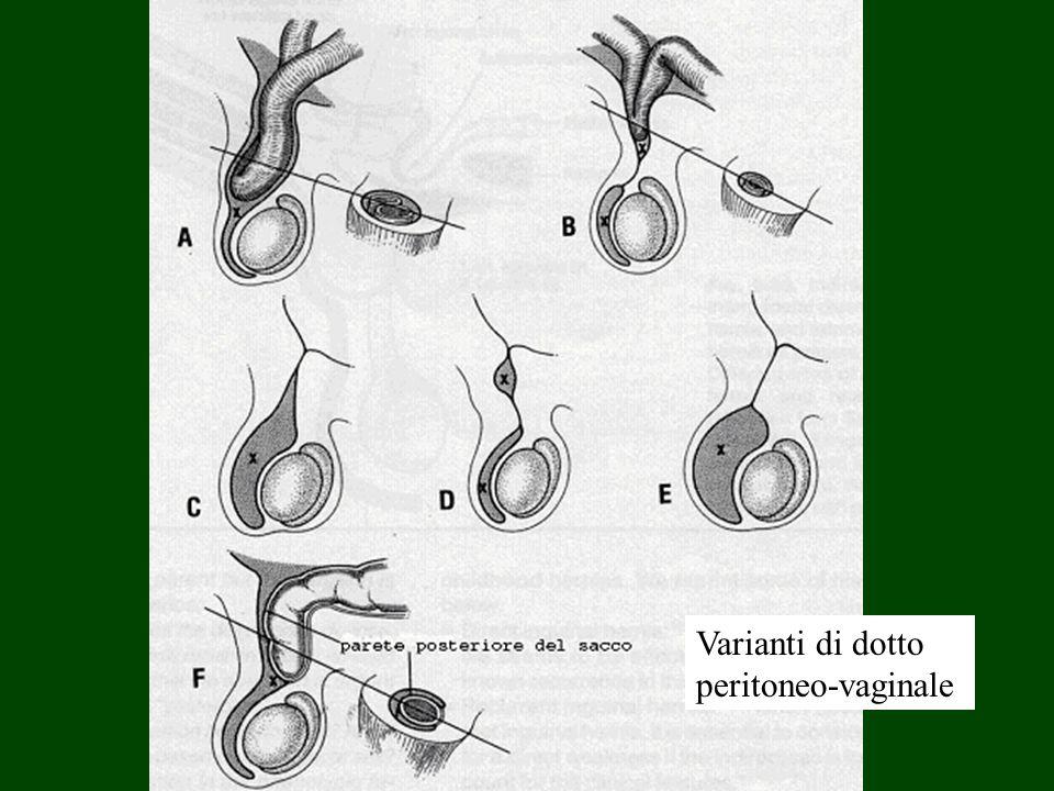 Varianti di dotto peritoneo-vaginale