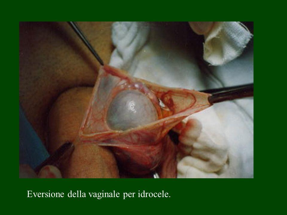 Eversione della vaginale per idrocele.
