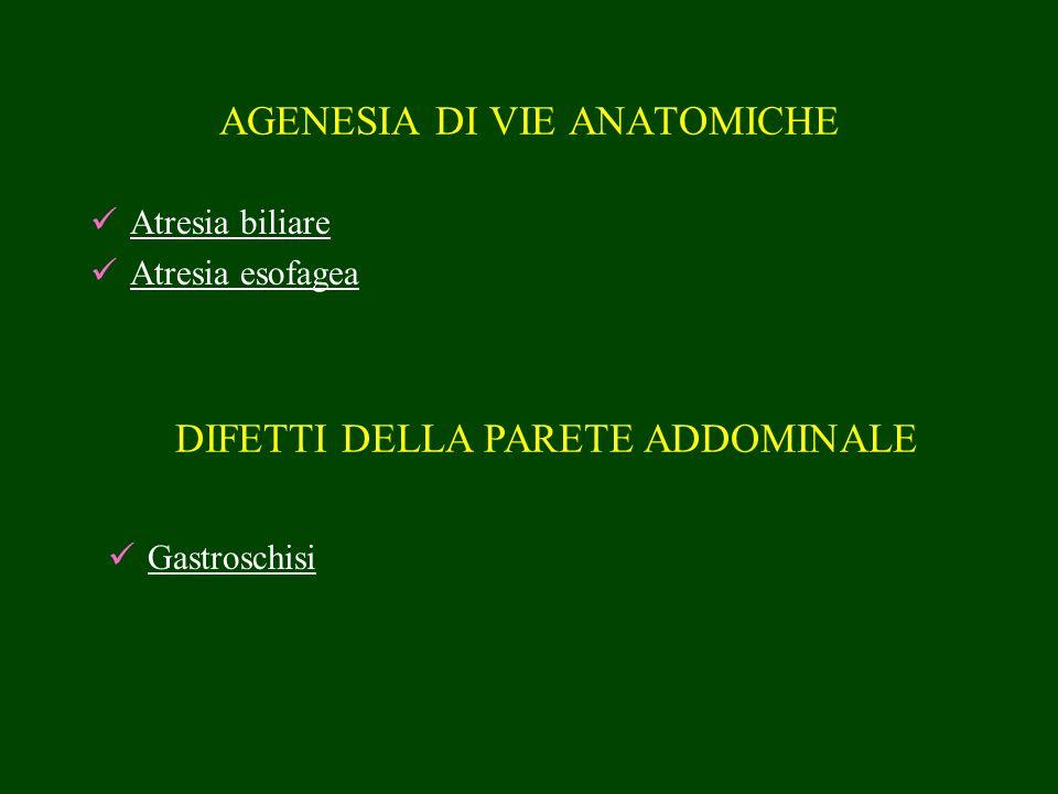 AGENESIA DI VIE ANATOMICHE Atresia biliare Atresia esofagea DIFETTI DELLA PARETE ADDOMINALE Gastroschisi