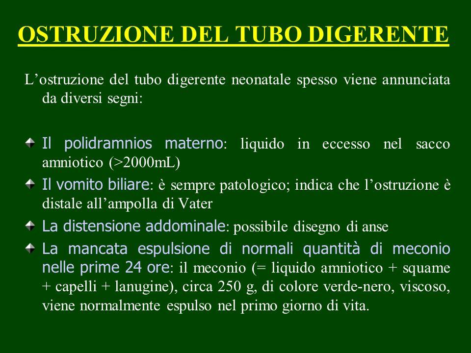OSTRUZIONE DEL TUBO DIGERENTE Lostruzione del tubo digerente neonatale spesso viene annunciata da diversi segni: Il polidramnios materno : liquido in