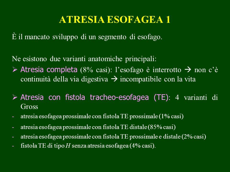 ATRESIA ESOFAGEA 1 È il mancato sviluppo di un segmento di esofago. Ne esistono due varianti anatomiche principali: Atresia completa (8% casi): lesofa