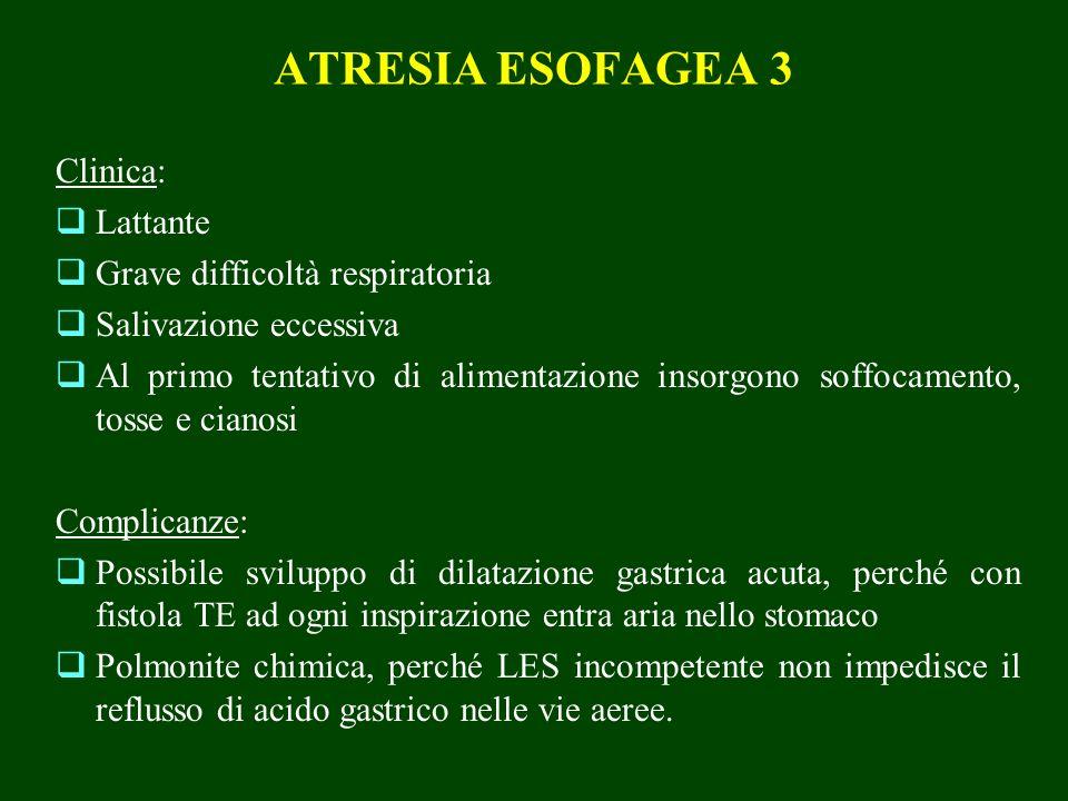 ATRESIA ESOFAGEA 3 Clinica: Lattante Grave difficoltà respiratoria Salivazione eccessiva Al primo tentativo di alimentazione insorgono soffocamento, t