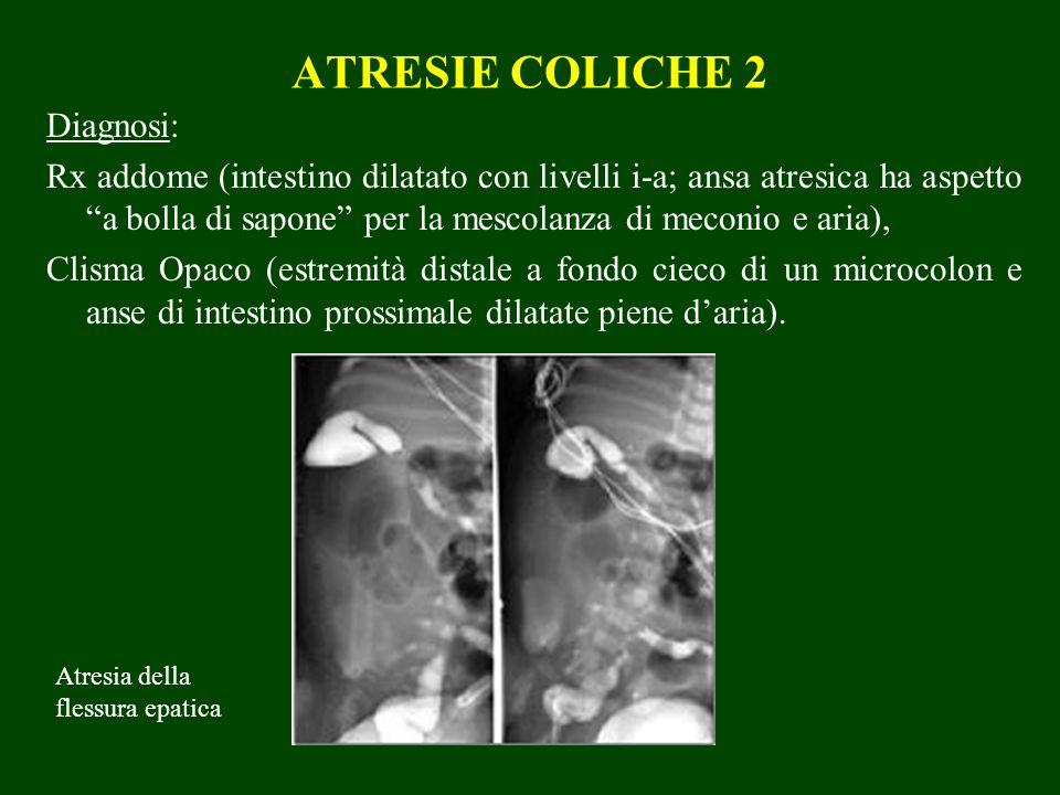 ATRESIE COLICHE 2 Diagnosi: Rx addome (intestino dilatato con livelli i-a; ansa atresica ha aspetto a bolla di sapone per la mescolanza di meconio e a
